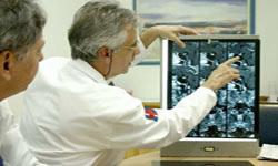 Врач Онкогинеколог и выявление признаков рака шейки матки