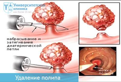 Лечение полипа в матке