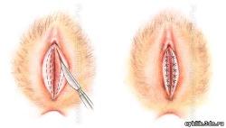 Клиновидная лабиопластика (модификация)