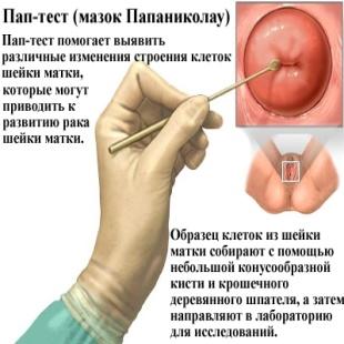 Дисплазия 2 степени шейки матки и беременность