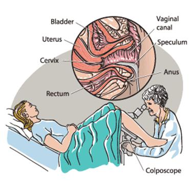 Шейка матки при беременности на ранних сроках фото