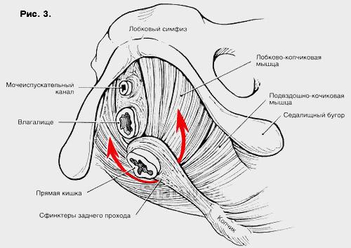 Мышечное кольцо, ограничивающее вход во влагалище снизу - Разрывы при родах